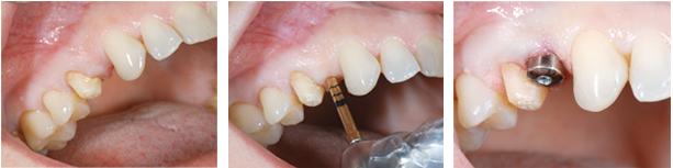 dikissiz-implant-1