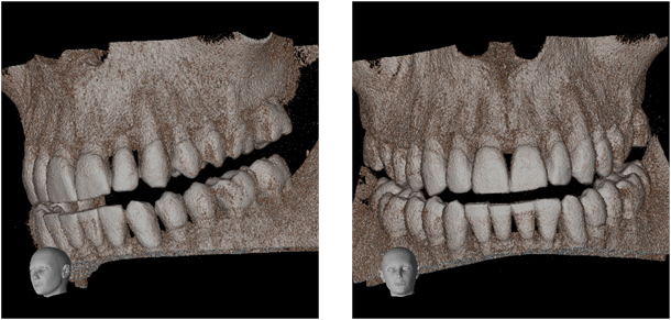 3D Dental Tomography